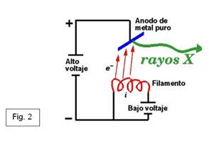 Esquema generador rayos X