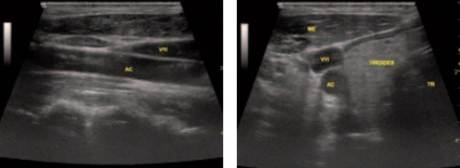 Aportes del uso de ultrasonidos en los accesos vasculares
