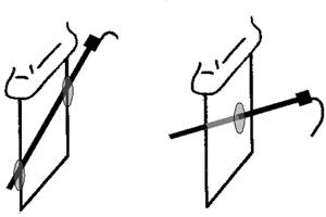 Figura 2. Abordajes fuera de plano (izquierda) y dentro de plano (derecha).