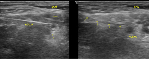 Fig.3. Aguja a nivel interescalénico por debajo de esternocleidomastoideo. Catéter en la misma localización que la aguja (flechas).