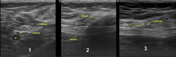 """Fig 5. Colocación de catéter poplíteo. 1) Punta de la aguja fuera de plano y nervio en eje corto. 2) Aguja en plano y nervio eje largo. 3) Catéter """"imagen doble raíl"""" sobre nervio."""