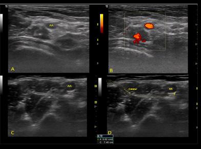 Fig.6. Imagen del catéter eje corto o transversal (A y B) o longitudinal (C y D) por debajo de la arteria axilar (AA).