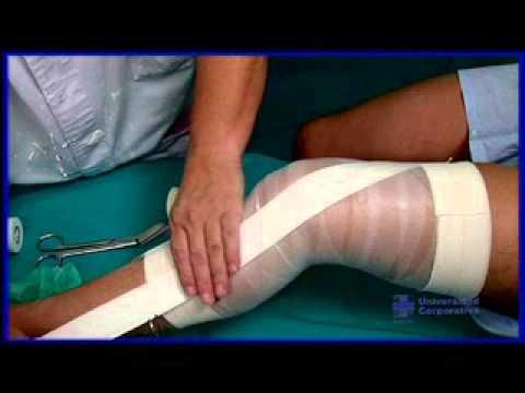 Distensión de ligamento de rodilla