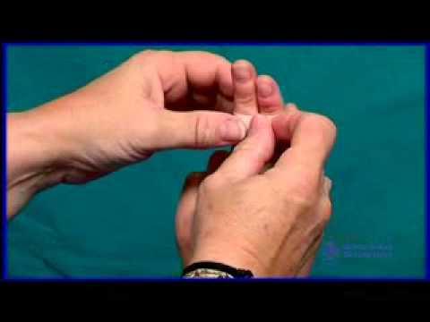 Esguince demás dedos (Sindactilia)