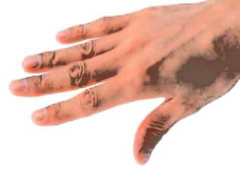 Higiene paciente inmovilizado: Uñas