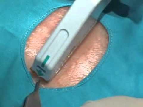Técnicas enfermeria: Colocación grapas