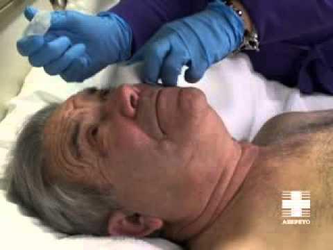 Vídeo cuidador. Higiene paciente inmovilizado: Ojos