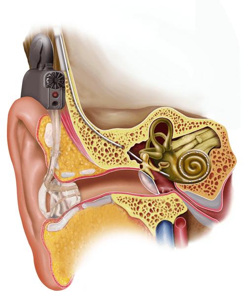 Reincorporación laboral en trabajadores sordos profundos tratados mediante implante coclear