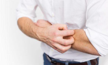 Sarna: qué es, recomendaciones para su prevención y tratamiento