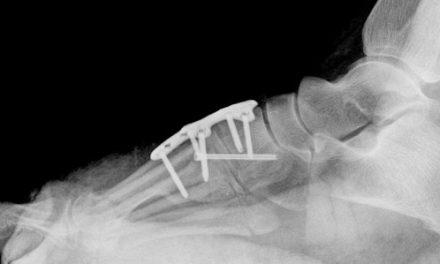 20 años de osteosíntesis