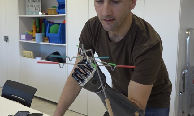Somos pioneros en la colocación de la primera prótesis que aprende con el paciente